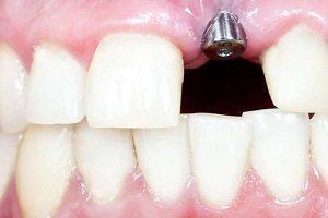 ایمپلنت دندان چند جلسه طول می کشد؟