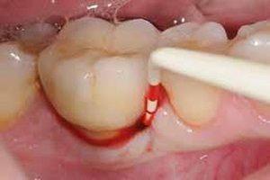 خونریزی بعد از ایمپلنت دندان به چه دلایلی ایجاد می شود؟