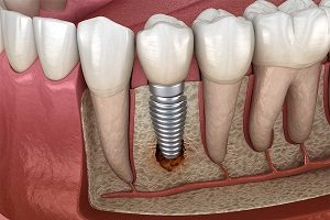 جوش نخوردن ایمپلنت دندان چه دلایلی می تواند داشته باشد؟