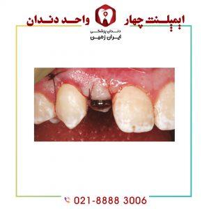 افتادن هیلینگ ایمپلنت دندان چه مشکلاتی ایجاد می کند؟