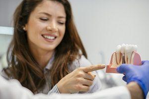 ایمپلنت دندان خوب است یا نه ؟ آنچه در رابطه با ایمپلنت دندان باید بدانید