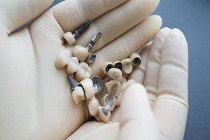 قیمت انواع ایمپلنت دندان بر چه اساسی تعیین می شود؟