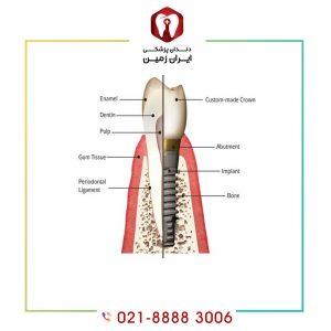 اباتمنت در ایمپلنت دندان به کدام قطعه گفته می شود و چه کاربردی دارد؟