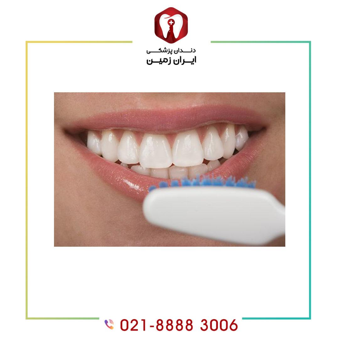 مراقبت از کامپوزیت دندان چه الزاماتی نیاز دارد؟