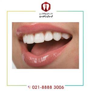 آیا کامپوزیت دندان درد دارد؟