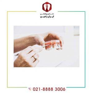 افتادن روکش ایمپلنت دندان بر اثر چه عواملی اتفاق می افتد؟