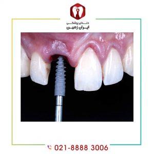 گذاشتن پیچ ایمپلنت دندان به چه صورت انجام می شود؟