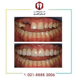 چسب موقت ایمپلنت دندان چه کارایی دارد؟