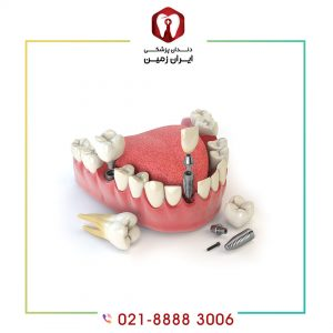 قیمت روکش ایمپلنت دندان چگونه محاسبه می شود؟