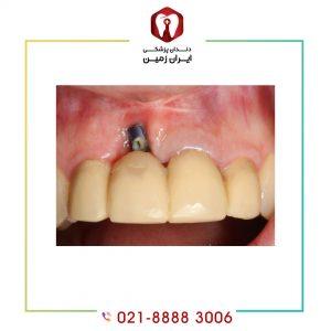 علت در آمدن ایمپلنت دندان چیست/ عواملی در بروز چنین مشکلی تاثیر گذار است؟