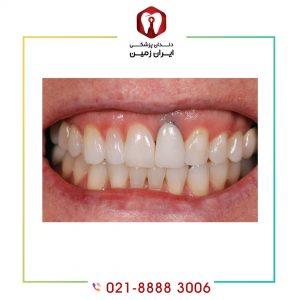 علائم جوش نخوردن ایمپلنت دندان چیست؟