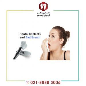 بوی بد دهان بعد از ایمپلنت دندان به چه دلیلی رخ می دهد؟