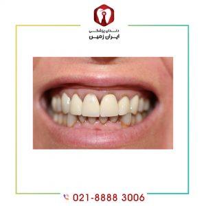معایب کامپوزیت ونیر نسبت به دیگر روش های زیباسازی دندان