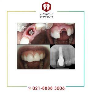 شرایط ایمپلنت دندان شامل چه مواردی است؟