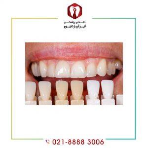 لمینت دندان نیش بیرون زده چگونه انجام می شود؟