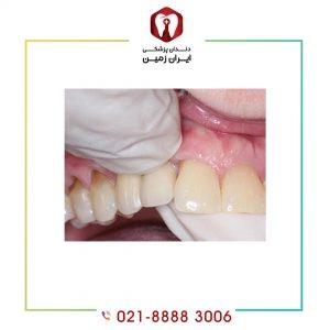لق شدن ایمپلنت دندان چه زمانی اتفاق می افتد؟