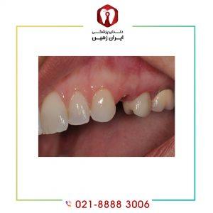 کنده شدن روکش ایمپلنت دندان چه علتی دارد و چگونه می توان آن را نصب نمود؟