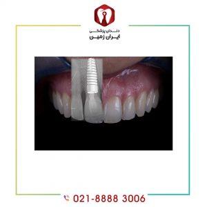 تعویض ایمپلنت دندان در چه زمانی انجام می شود؟
