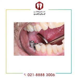 خطرات ایمپلنت دندان و نحوه مقابله با آنها چیست؟