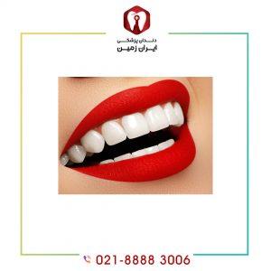 کاندید مناسب برای لمینت دندان چه فردی است؟