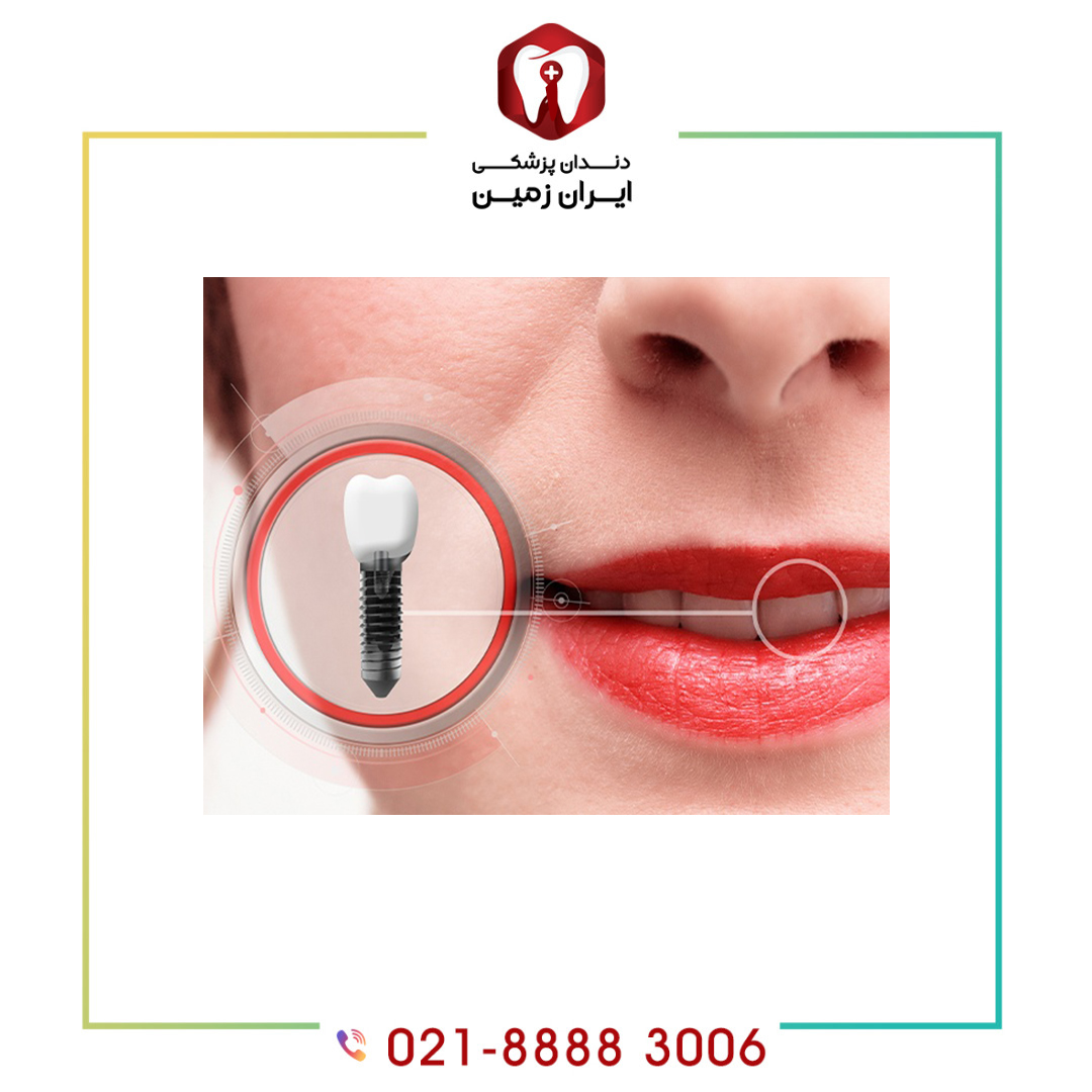 10 نکته کلیدی قبل از انجام ایمپلنت دندان که باید بدانید