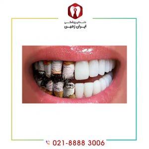 مصرف سیگار بعد از لمینت دندان باعث تغییر رنگ لمینت می شود