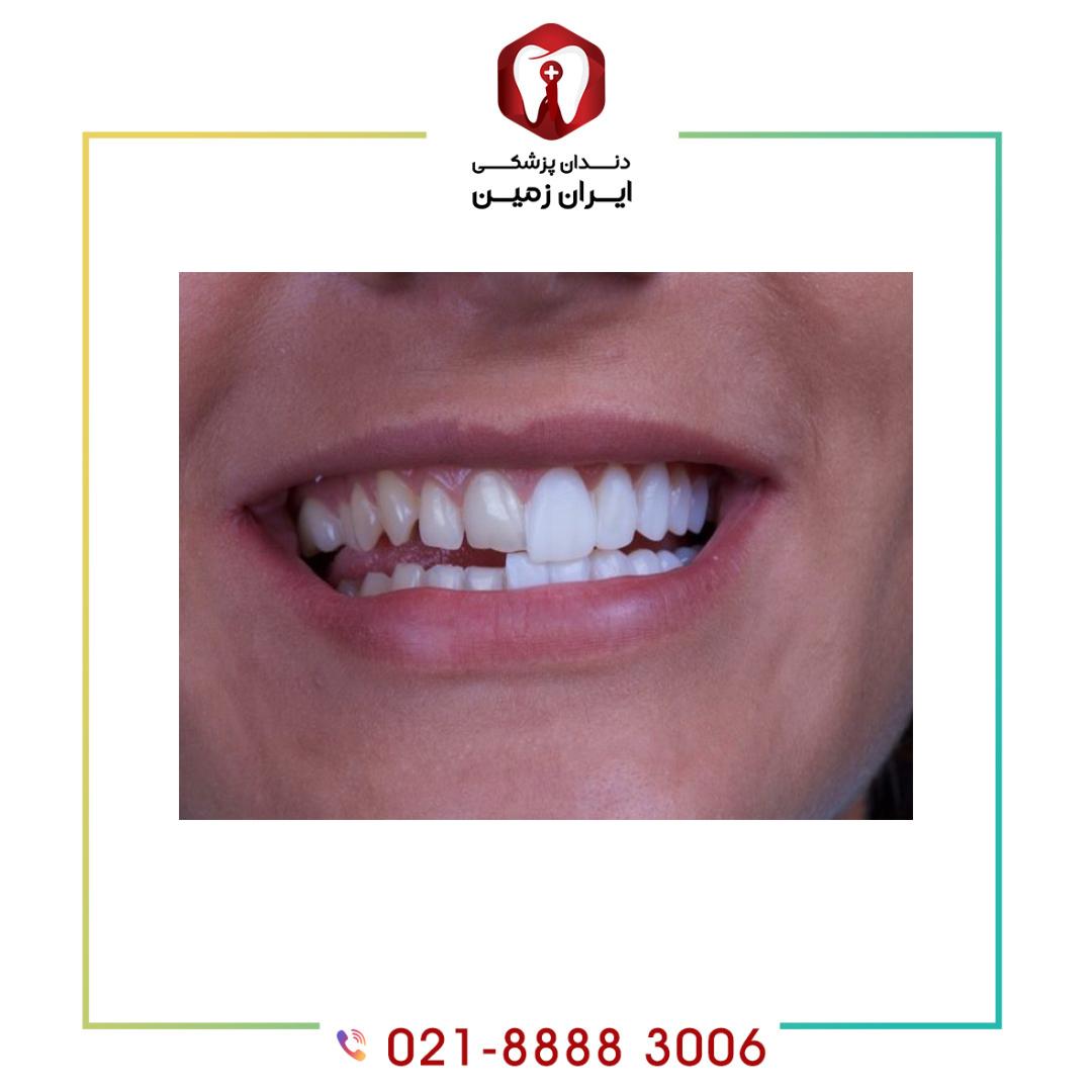 رنگ کامپوزیت ونیر دندان باید چه ویژگی هایی داشته باشد ؟