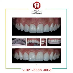 مراحل نصب لمینت دندان چگونه است؟