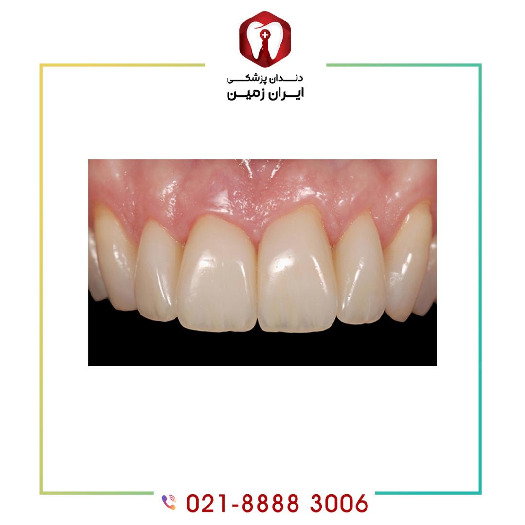 ماندگاری کامپوزیت ونیر دندان چگونه افزایش می یابد؟