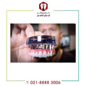 کاشت دندان چگونه انجام می شود ؟ ایمپلنت دندان چیست؟