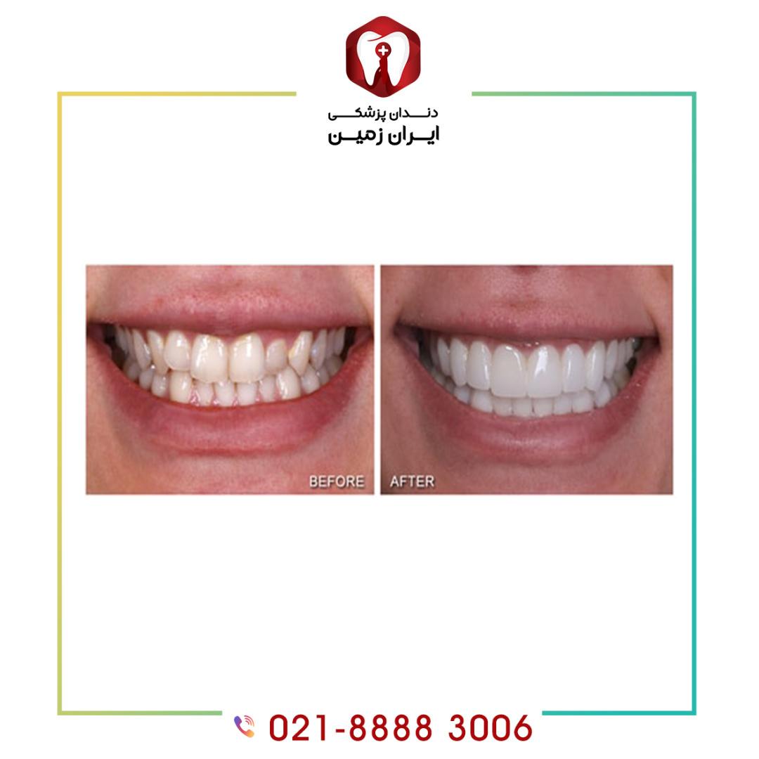 لمینت دندان نامنظم روش مفیدی برای مرتب کردن آنها است؟
