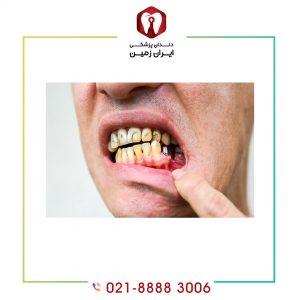 بدترین و ساده ترین مشکل ایمپلنت دندان چیست؟
