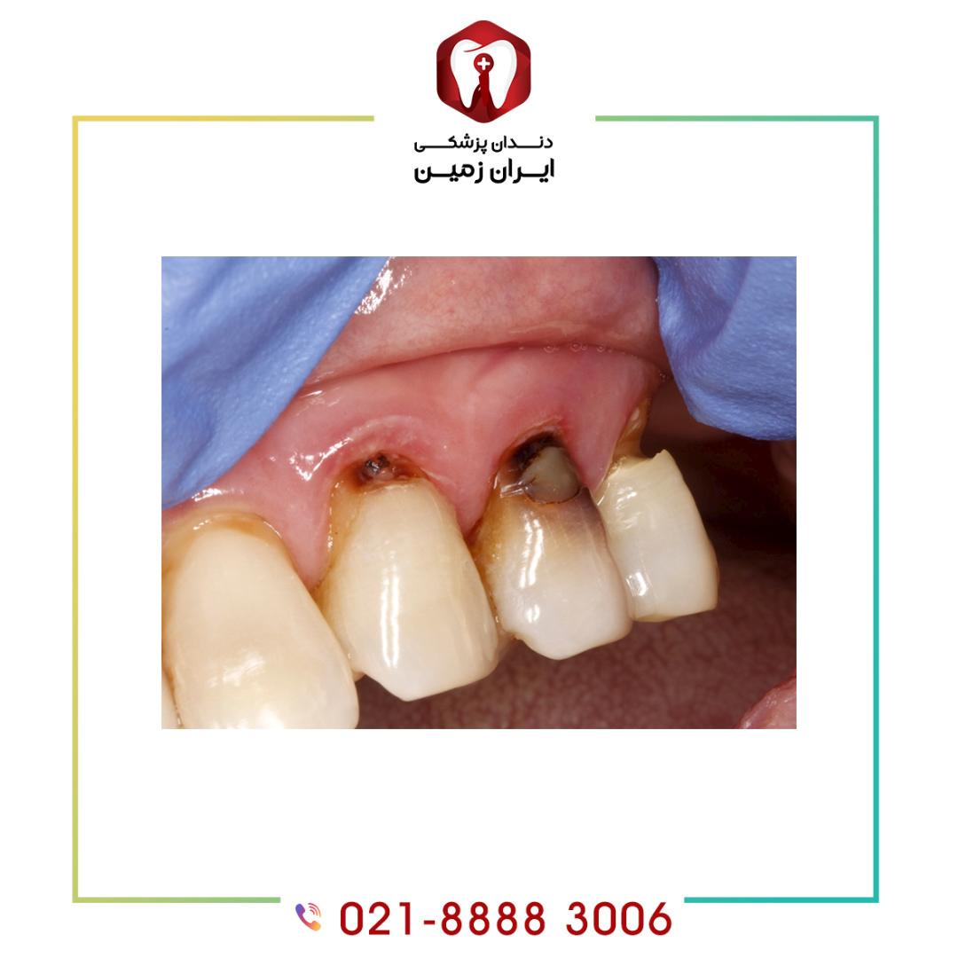 علت پوسیدگی دندان زیر کامپوزیت چیست؟ چگونه میتوان از آن پیشگیری کرد؟