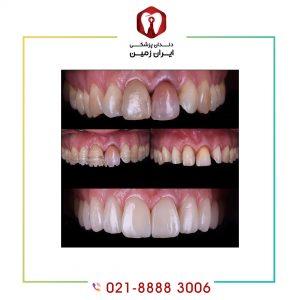دلایل پوسیدن دندان لمینت شده چیست؟ چگونه می توان از آن پیشگیری کرد؟