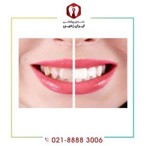 کامپوزیت بهتر است یا کامپوزیت ونیر ؟ کدام روش بهتری برای زیبایی دندان است؟