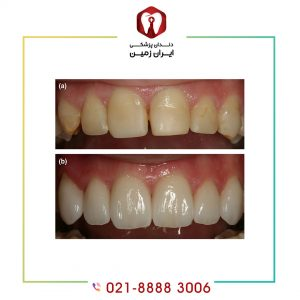 لمینت دندان ترک خورده به زیبایی دندان شما می افزاید
