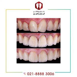 تعویض کامپوزیت دندان امکان پذیر است؟