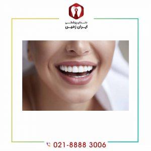لمینت دندان به صورت اقساطی انجام می شود؟