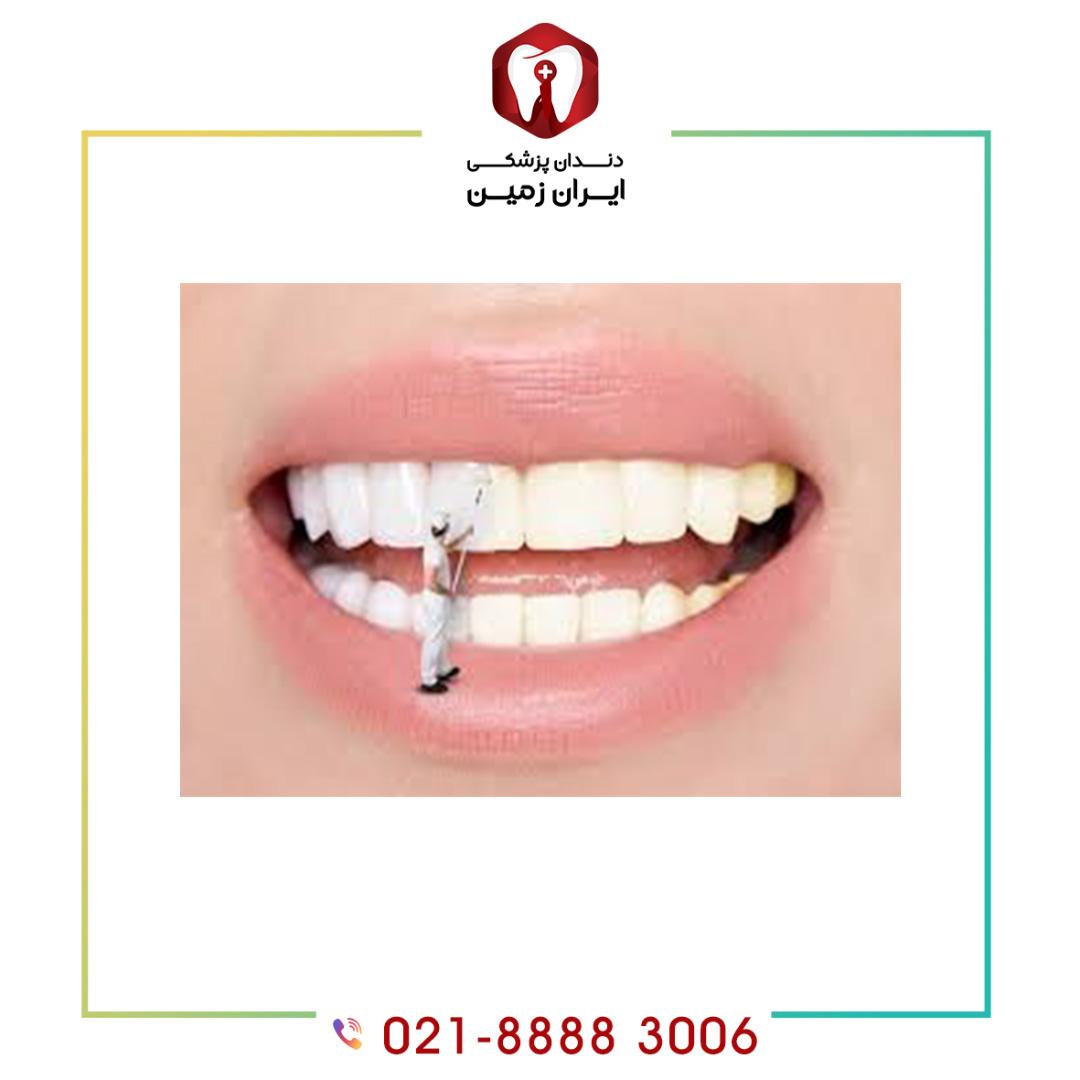 طول عمر کامپوزیت ونیر دندان چند سال است؟