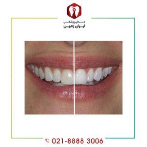 ماندگاری رنگ در لمینت دندان به عواملی بستگی دارد؟