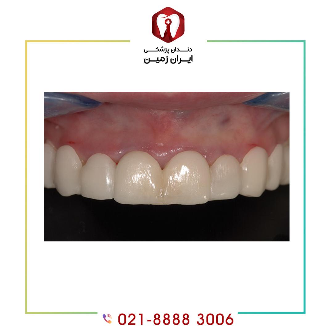 عفونت لثه بعد از کامپوزیت دندان با چه علائمی خود را نشان می دهد؟