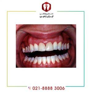 التهاب بعد از کامپوزیت دندان به چه دلایلی اتفاق می افتد؟