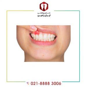 چرا تورم لثه بعد از کامپوزیت دندان ایجاد می شود؟ + راه حل های درمانی