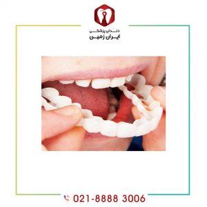 لمینت موقت دندان چیست؟ چگونه باید از آن مراقبت نمود؟