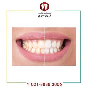 کامپوزیت دندان زرد چگونه انجام می شود؟ توصیه های لازم قبل آن