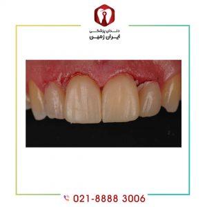 خونریزی بعد از لمینت دندان از عوارض نادر لمینت است