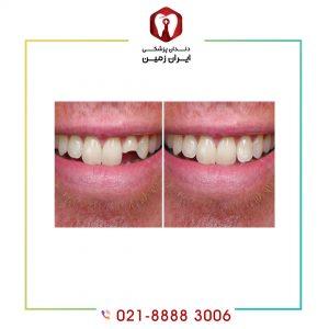 لمینت دندان شکسته شده به چه شکلی انجام می شود؟