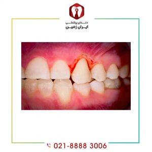 علل خونریزی بعد از کامپوزیت دندان چیست و چگونه می توان آن را کنترل کرد؟