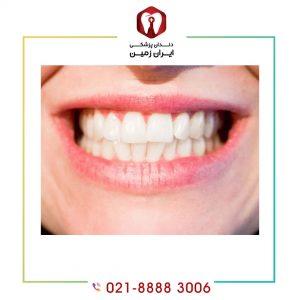 عواقب فشار بر کامپوزیت دندان چیست؟