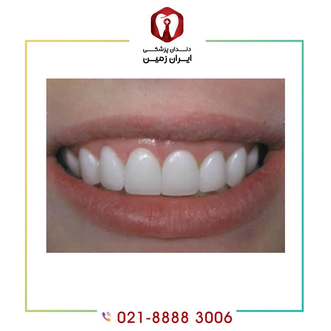 نحوه نصب کامپوزیت ونیر روی دندان به چه شکلی است؟